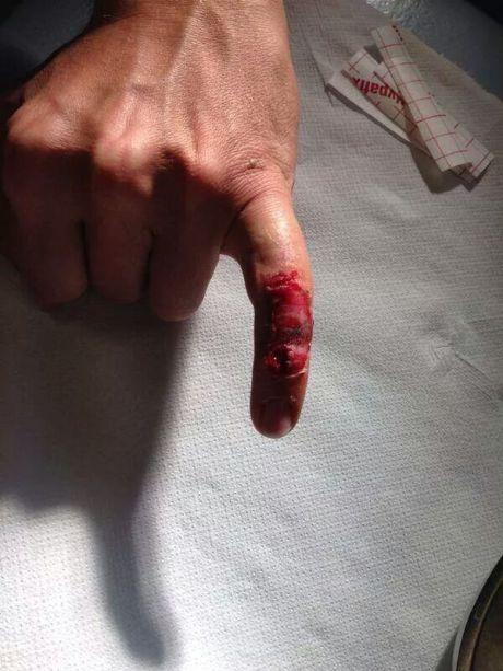 rossi_finger